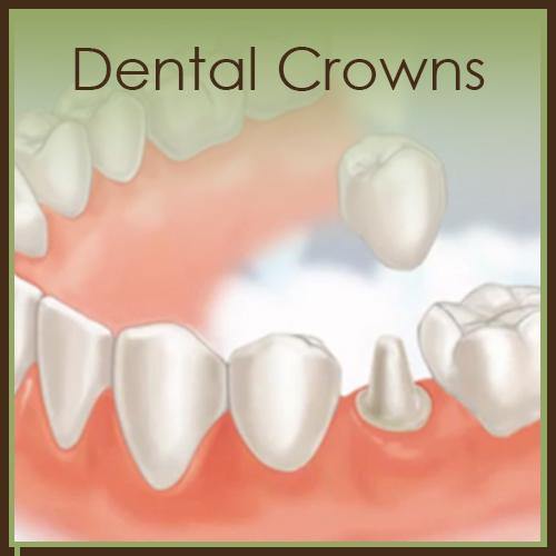 dental crowns florida