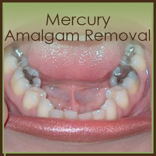 mercury and amalgam removal