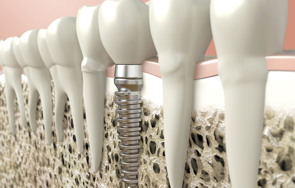dental implants inside jawbone