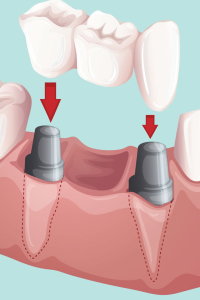 dental bridges and crowns by TLC Dentistry dunedin florida
