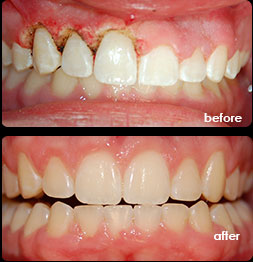 laser-assisted-periodontal-therapy-florida-holistic dentist-rawa hassan-dunedin