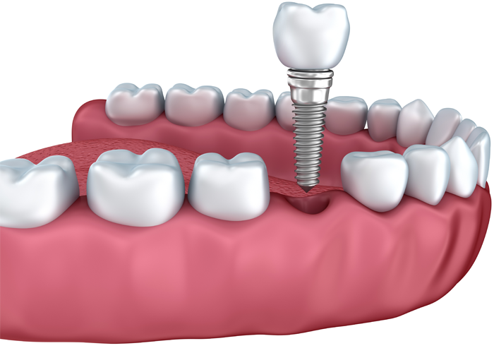 are dental implants radioactive