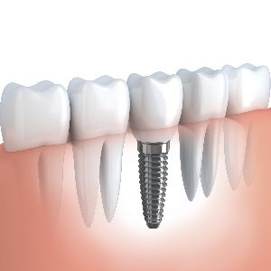 using zirconia in dental implant devices