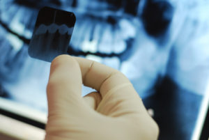 Dental health and wisdom teeth