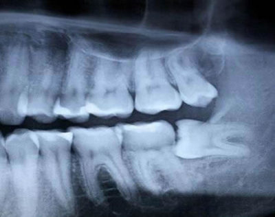 impacted wisdom teeth causing dental concerns