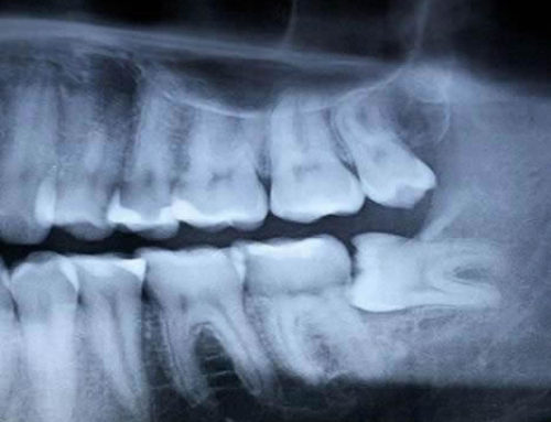 How to Tell if You Have Impacted Wisdom Teeth